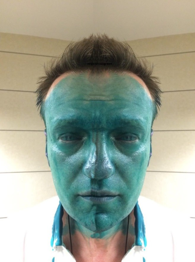 навальный в зеленке